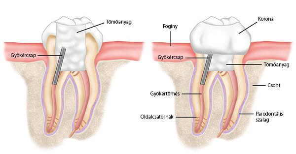Gyökércsapos fogmű