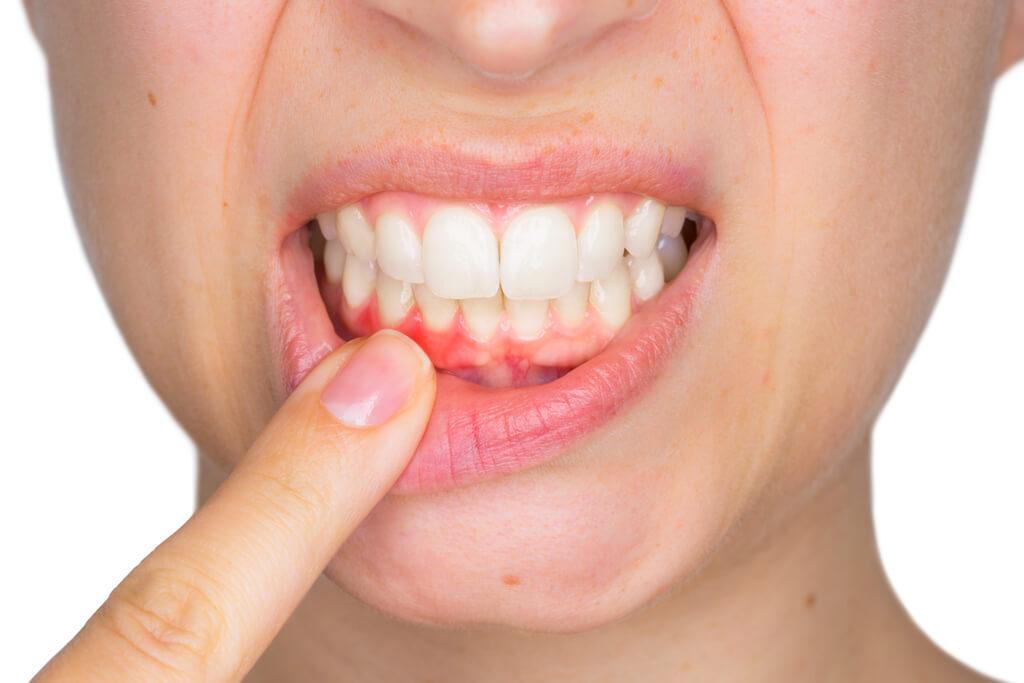 Parodontológia - gyulladt fogíny