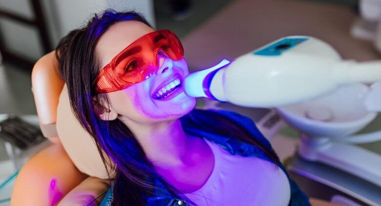 Fehérítő fogkrém, otthoni vagy professzionális fogfehérítés, melyiket válasszam?
