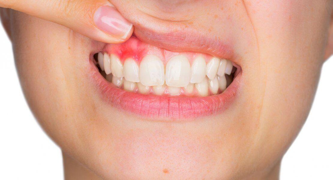 Fogínyvérzés 5 oka – közülük csak egy a fogágybetegség